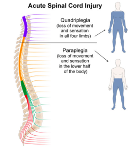 Occupational therapy for spinal cord injury home health desk occupational therapists ots play a key role in enabling spinal cord injury sci patients to restore function and return to productive lives ccuart Gallery